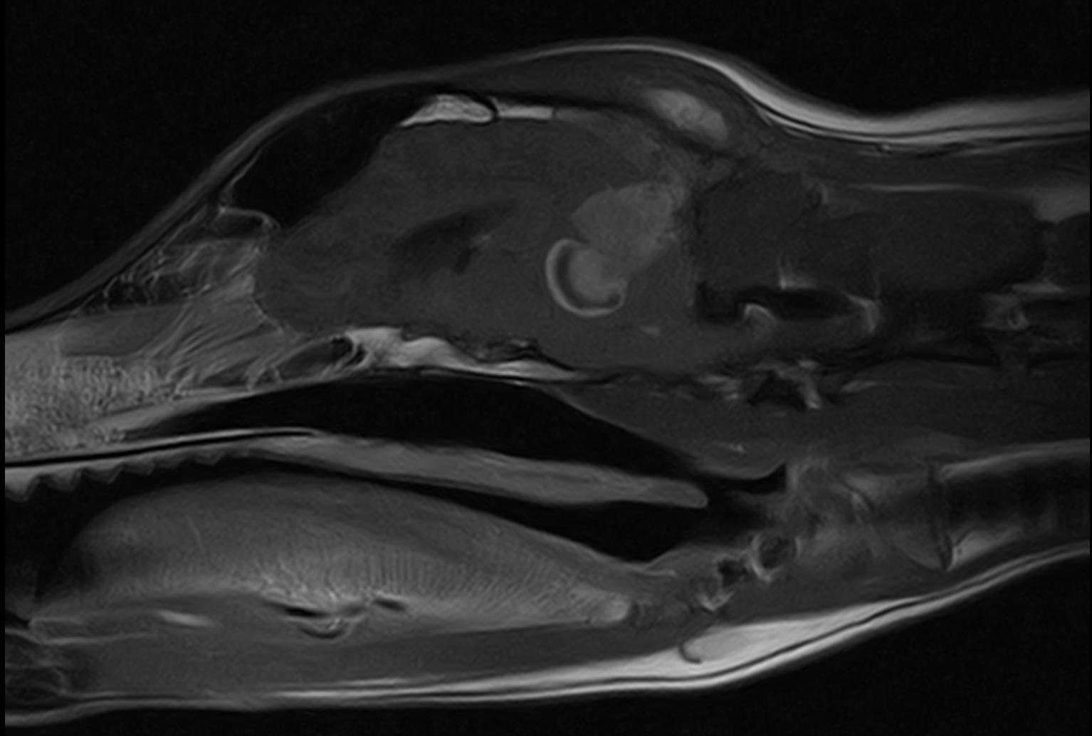 Brain Tumor MRI T1 Post Contrast Sagital
